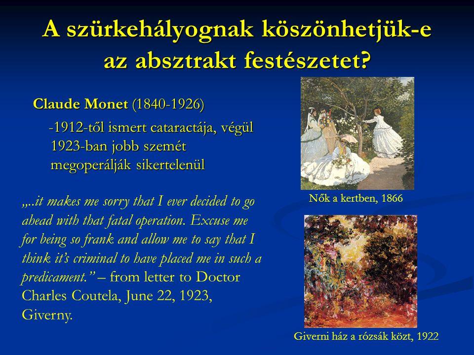 A szürkehályognak köszönhetjük-e az absztrakt festészetet? Claude Monet (1840-1926) -1912-től ismert cataractája, végül 1923-ban jobb szemét megoperál