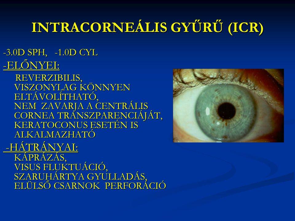 INTRACORNEÁLIS GYŰRŰ (ICR) -3.0D SPH, -1.0D CYL -ELŐNYEI: REVERZIBILIS, VISZONYLAG KÖNNYEN ELTÁVOLÍTHATÓ, NEM ZAVARJA A CENTRÁLIS CORNEA TRANSZPARENCI