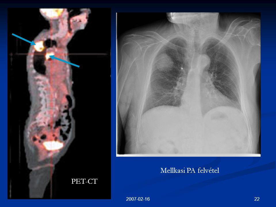 222007-02-16 PET-CT Mellkasi PA felvétel