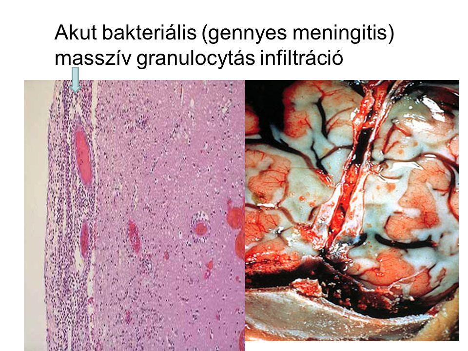 "Krónikus ""Lyme betegség (?) •78 patients who were seropositive for IgG antibodies to Borrelia burgdorferi at the time of enrollment •51 patients who were seronegative."