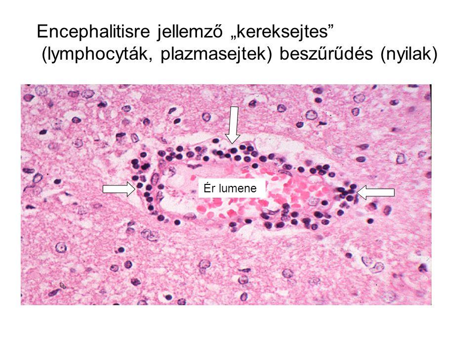 """Encephalitisre jellemző """"kereksejtes (lymphocyták, plazmasejtek) beszűrűdés (nyilak) Ér lumene"""