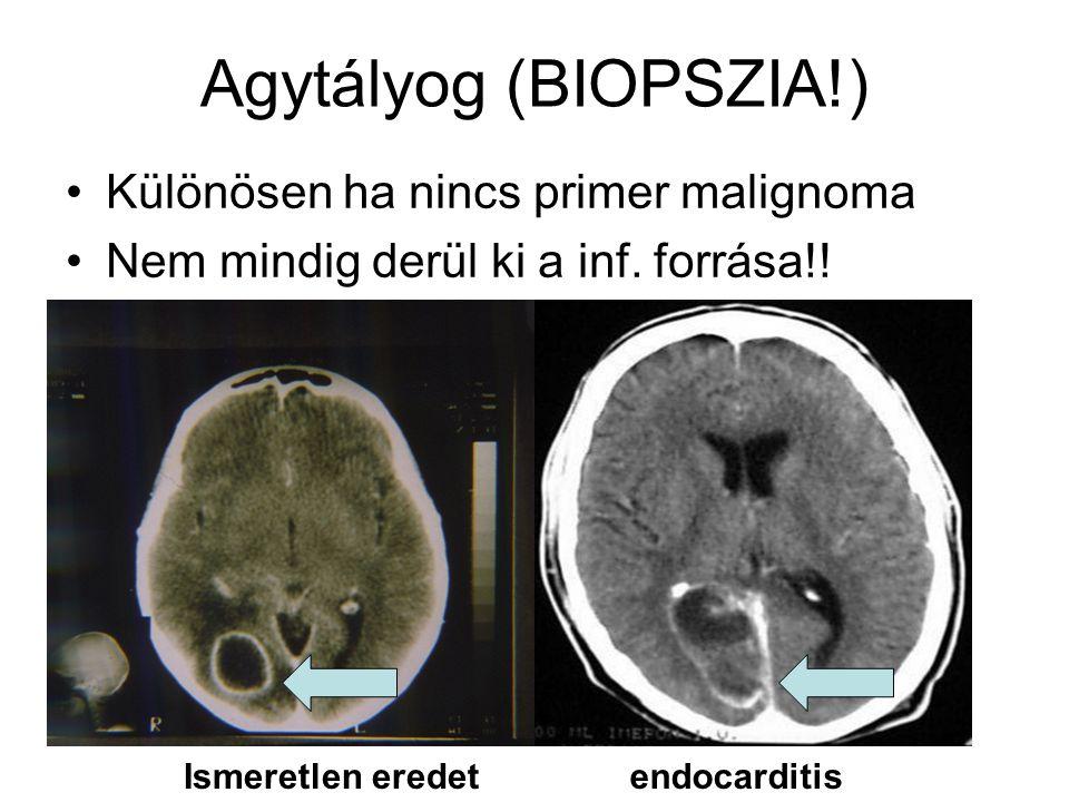 Agytályog (BIOPSZIA!) •Különösen ha nincs primer malignoma •Nem mindig derül ki a inf.