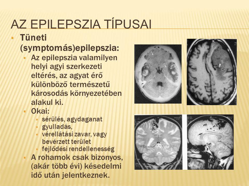 AZ EPILEPSZIA TÍPUSAI  Tüneti (symptomás)epilepszia:  Az epilepszia valamilyen helyi agyi szerkezeti eltérés, az agyat érő különböző természetű káro