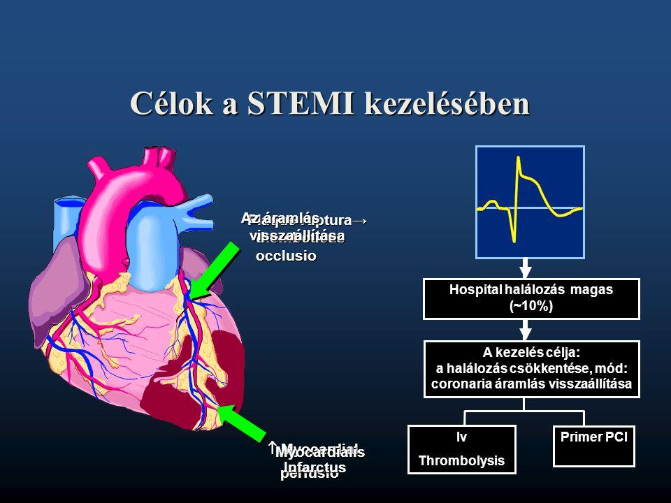  Myocardial. perfusio perfusio Plaque ruptura→ thomboticus occlusio Myocardialis Infarctus Iv Thrombolysis Primer PCI Az áramlás visszaállítása Célok