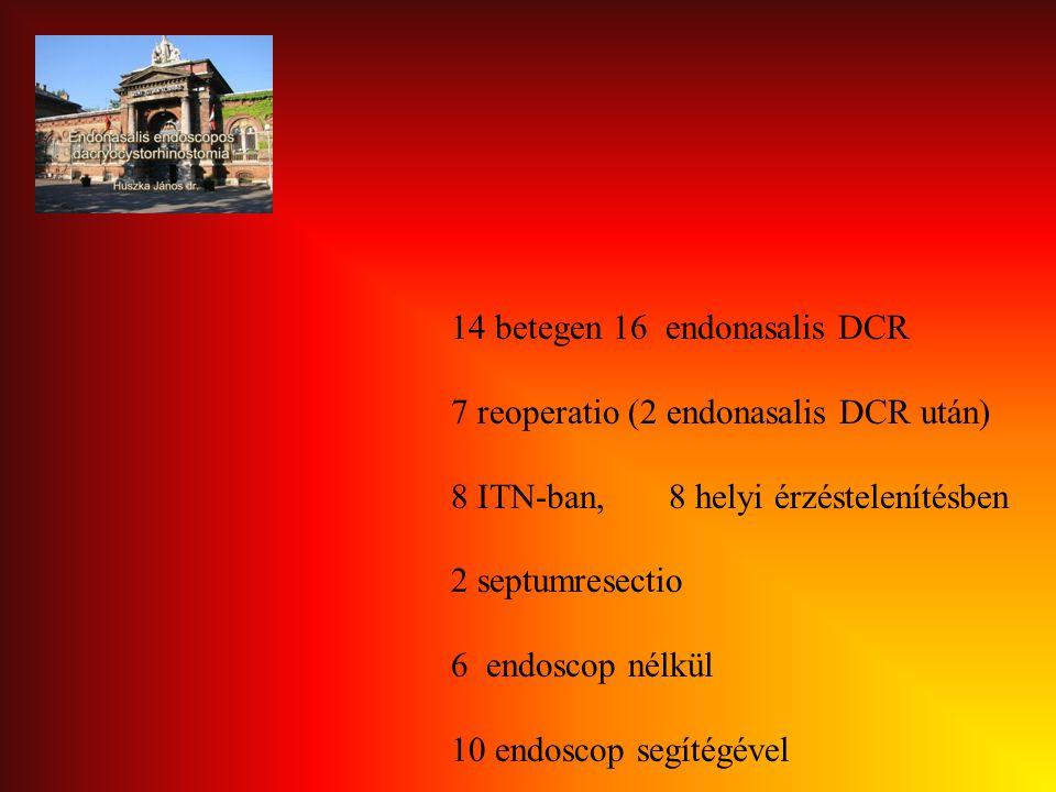 14 betegen 16 endonasalis DCR 7 reoperatio (2 endonasalis DCR után) 8 ITN-ban, 8 helyi érzéstelenítésben 2 septumresectio 6 endoscop nélkül 10 endosco