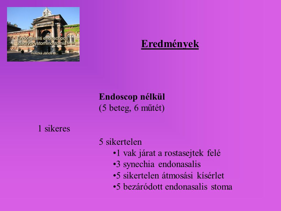 Eredmények Endoscop nélkül (5 beteg, 6 műtét) 5 sikertelen •1 vak járat a rostasejtek felé •3 synechia endonasalis •5 sikertelen átmosási kísérlet •5 bezáródott endonasalis stoma 1 sikeres