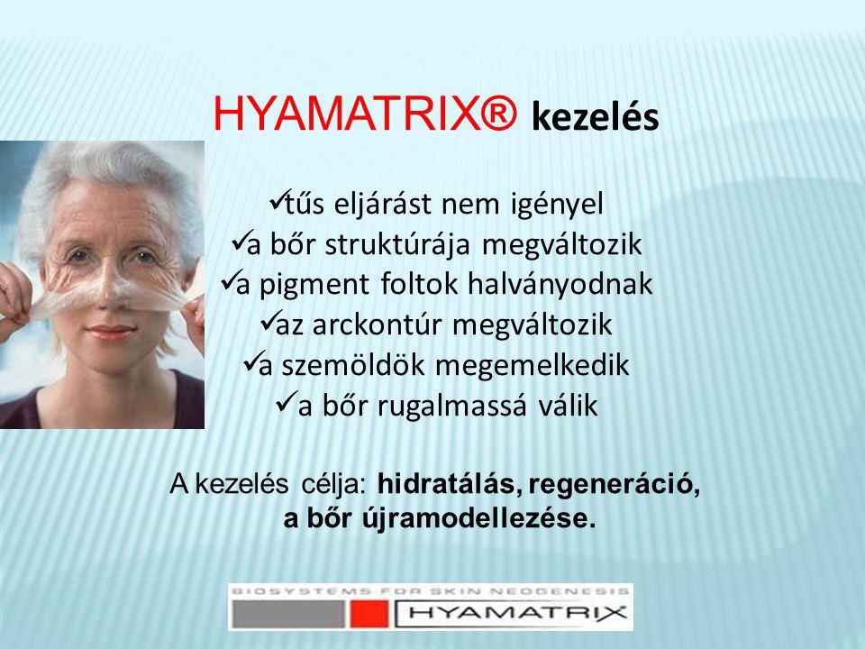 HYAMATRIX® kezelés  tűs eljárást nem igényel  a bőr struktúrája megváltozik  a pigment foltok halványodnak  az arckontúr megváltozik  a szemöldök