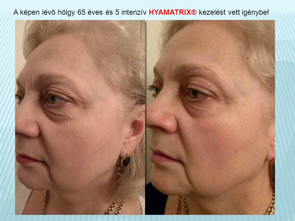 A képen lévő hölgy 65 éves és 5 intenzív HYAMATRIX® kezelést vett igénybe!