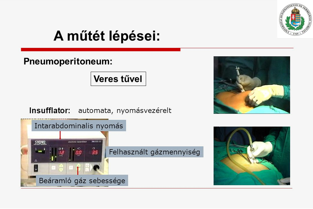 Pneumoperitoneum: Veres tűvel A műtét lépései: Insufflator: automata, nyomásvezérelt Intarabdominalis nyomás Beáramló gáz sebessége Felhasznált gázmennyiség