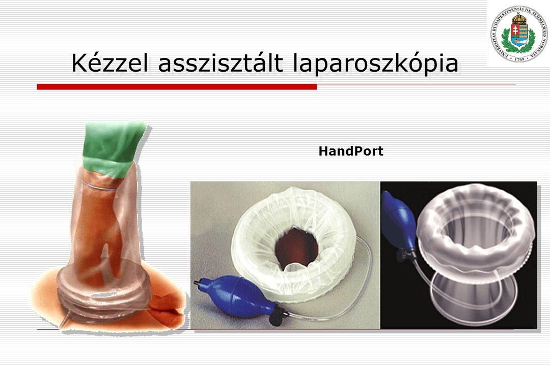 Kézzel asszisztált laparoszkópia HandPort