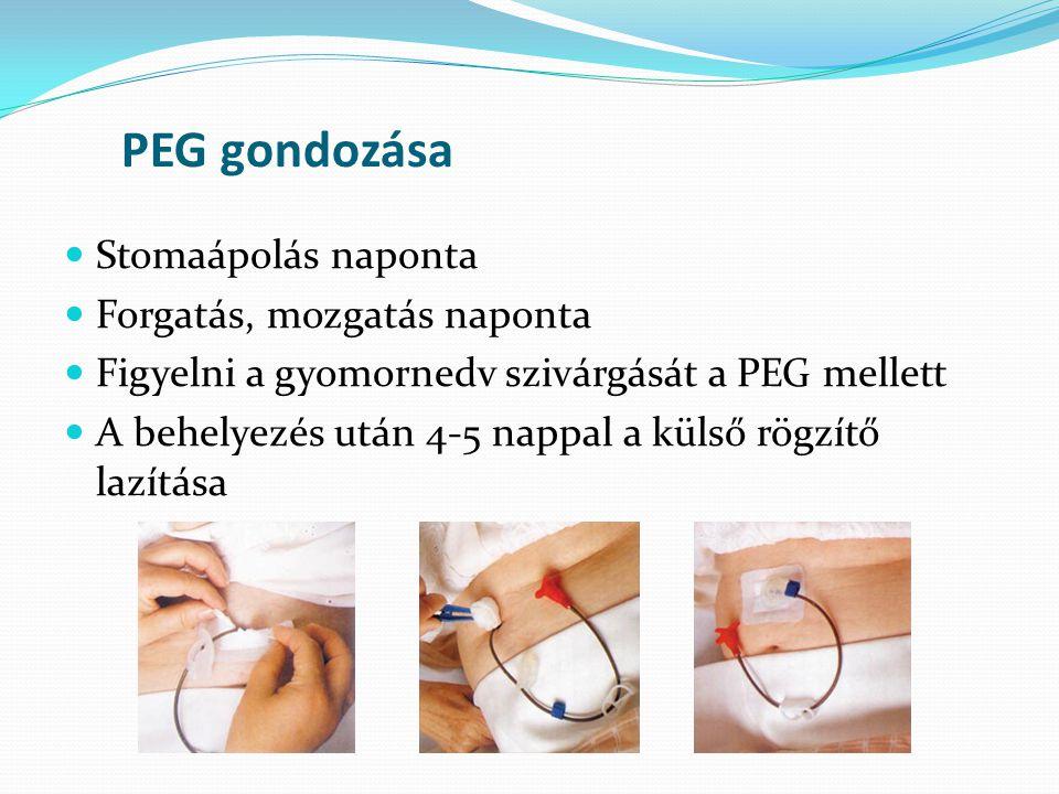PEG gondozása  Stomaápolás naponta  Forgatás, mozgatás naponta  Figyelni a gyomornedv szivárgását a PEG mellett  A behelyezés után 4-5 nappal a kü