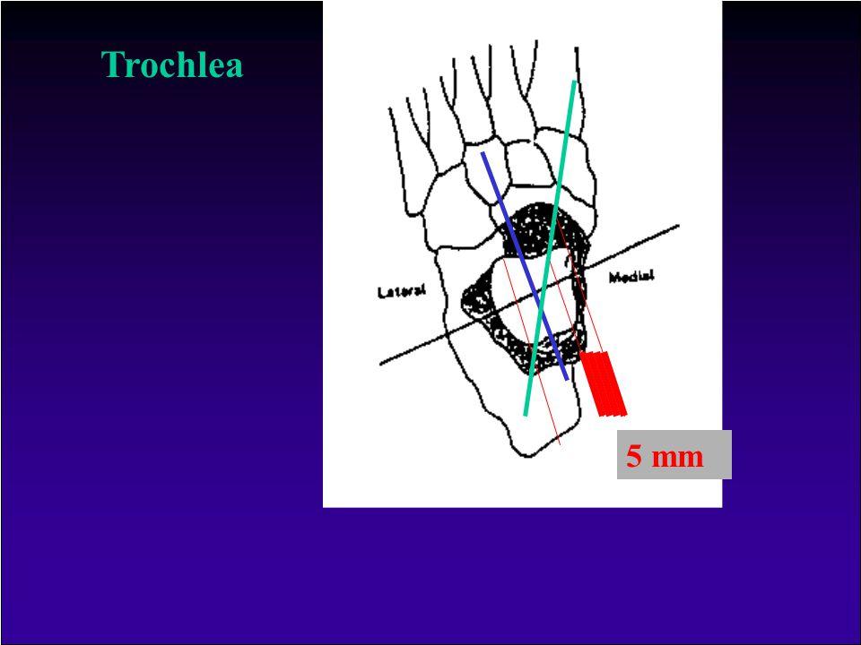 Sagittális síkban A malleolusok közötti rés változik F E A laterális malleolus mediálisan több, mint 30°-t fordul el Emiatt dorsalflexióban nagy stabi