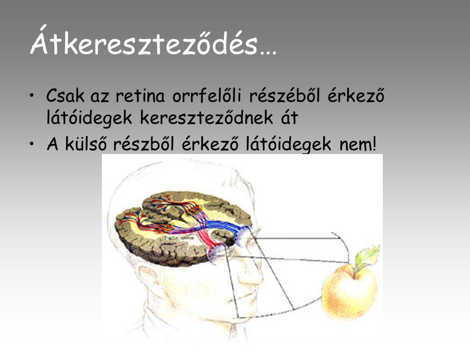 Átkereszteződés… •Csak az retina orrfelőli részéből érkező látóidegek kereszteződnek át •A külső részből érkező látóidegek nem!