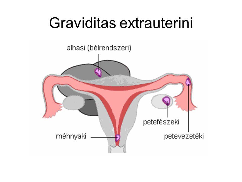 Graviditas extrauterini