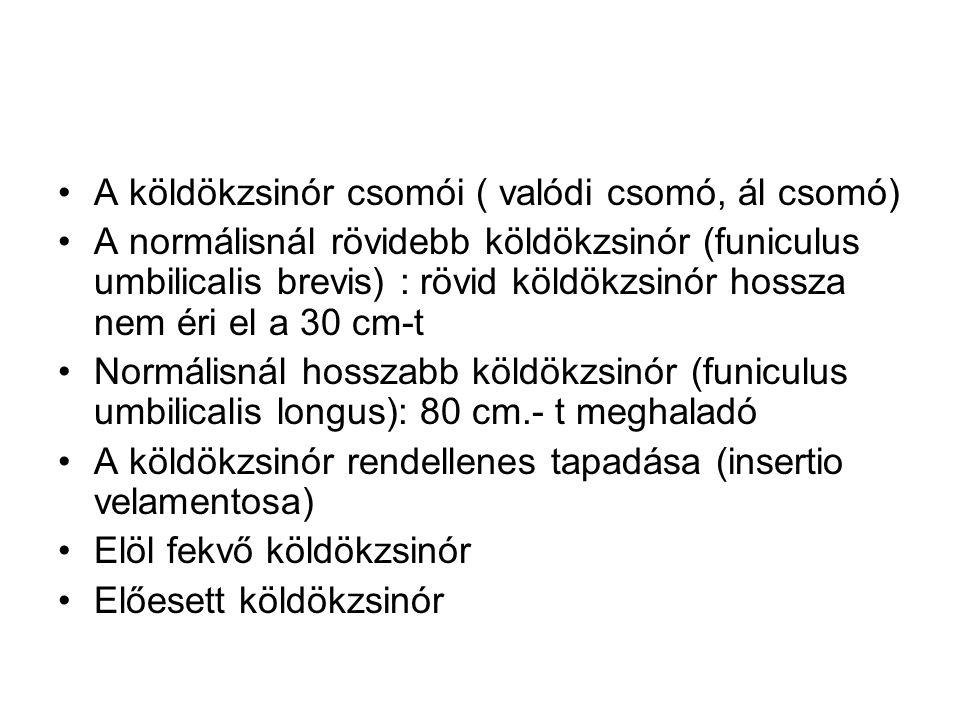 •A köldökzsinór csomói ( valódi csomó, ál csomó) •A normálisnál rövidebb köldökzsinór (funiculus umbilicalis brevis) : rövid köldökzsinór hossza nem é