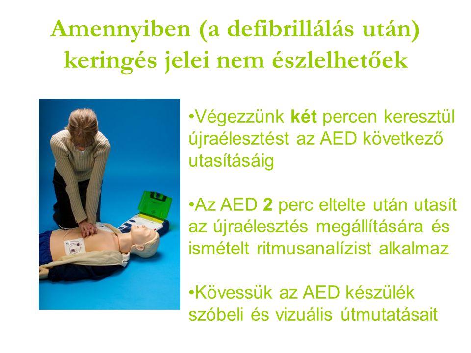 Amennyiben (a defibrillálás után) keringés jelei nem észlelhetőek •Végezzünk két percen keresztül újraélesztést az AED következő utasításáig •Az AED 2 perc eltelte után utasít az újraélesztés megállítására és ismételt ritmusanalízist alkalmaz •Kövessük az AED készülék szóbeli és vizuális útmutatásait