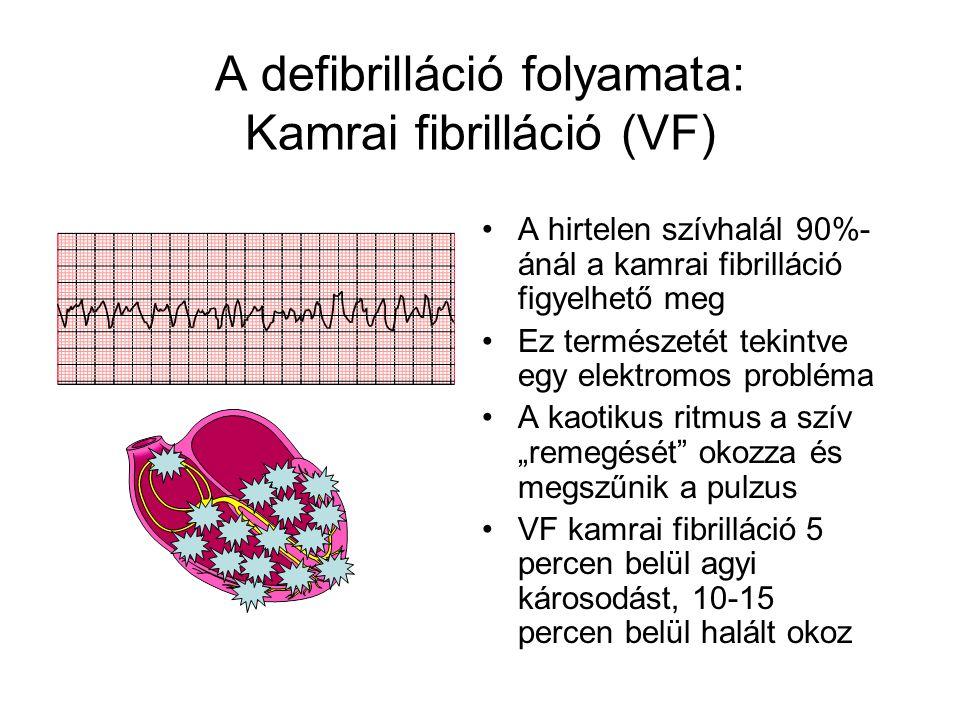 """A defibrilláció folyamata: Kamrai fibrilláció (VF) •A hirtelen szívhalál 90%- ánál a kamrai fibrilláció figyelhető meg •Ez természetét tekintve egy elektromos probléma •A kaotikus ritmus a szív """"remegését okozza és megszűnik a pulzus •VF kamrai fibrilláció 5 percen belül agyi károsodást, 10-15 percen belül halált okoz"""