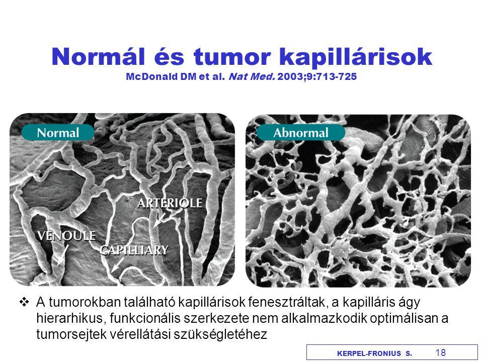 Szolid tumorok kezelése nanorészecskék segítségével Jain RK és Stylianopoulos T, Nat.