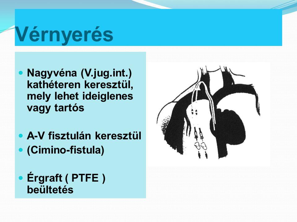 Vérnyerés  Nagyvéna (V.jug.int.) kathéteren keresztül, mely lehet ideiglenes vagy tartós  A-V fisztulán keresztül  (Cimino-fistula)  Érgraft ( PTF