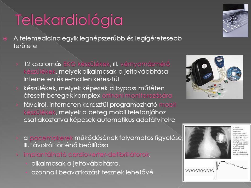 A telemedicina egyik legnépszerűbb és legígéretesebb területe EKG készülékekvérnyomásmérő készülékek › 12 csatornás EKG készülékek, ill. vérnyomásmé