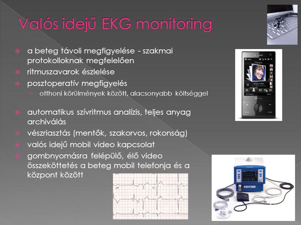  a beteg távoli megfigyelése - szakmai protokolloknak megfelelően  ritmuszavarok észlelése  posztoperatív megfigyelés › otthoni körülmények között,