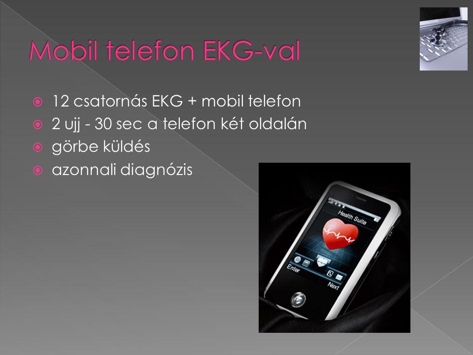  12 csatornás EKG + mobil telefon  2 ujj - 30 sec a telefon két oldalán  görbe küldés  azonnali diagnózis