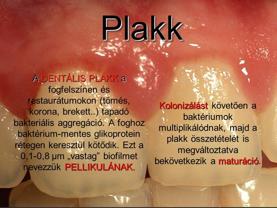PlakkPlakk A DENTÁLIS PLAKK a PELLIKULÁNAK. A DENTÁLIS PLAKK a fogfelszínen és restaurátumokon (tömés, korona, brekett..) tapadó bakteriális aggregáci