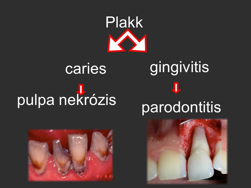Plakk parodontitis pulpa nekrózis caries gingivitis