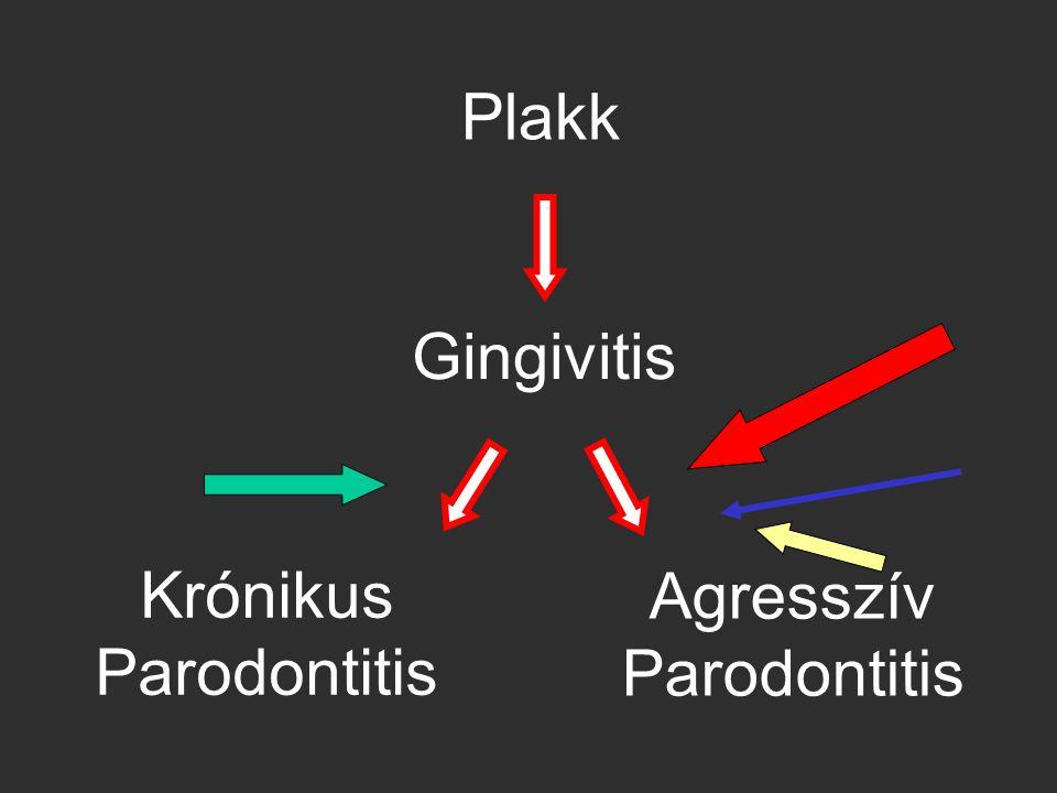 Plakk Gingivitis Krónikus Parodontitis Agresszív Parodontitis