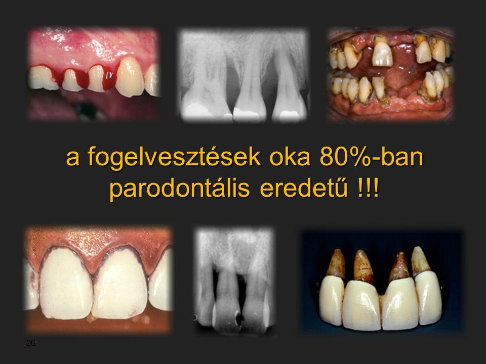 26 a fogelvesztések oka 80%-ban parodontális eredetű !!!