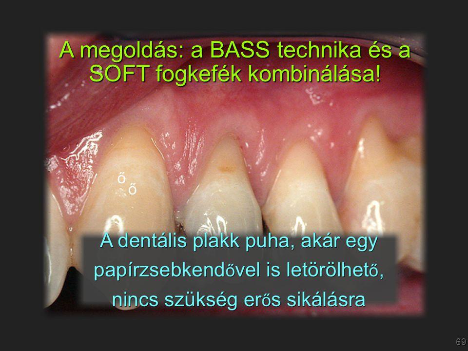 69 A megoldás: a BASS technika és a SOFT fogkefék kombinálása! ő ő