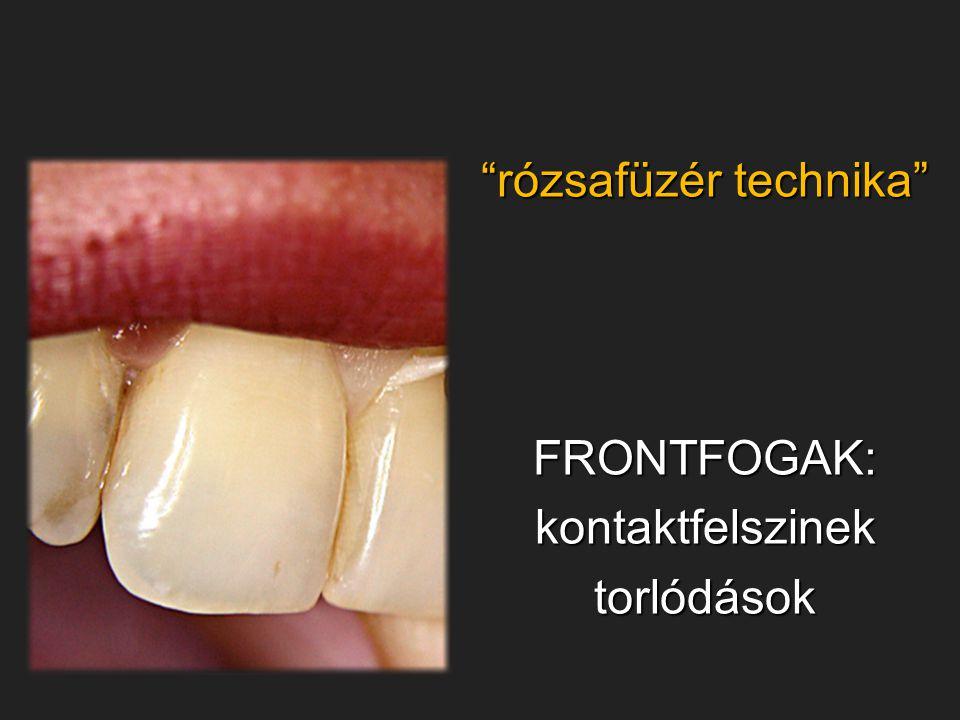 """""""rózsafüzér technika"""" FRONTFOGAK:kontaktfelszinektorlódások"""