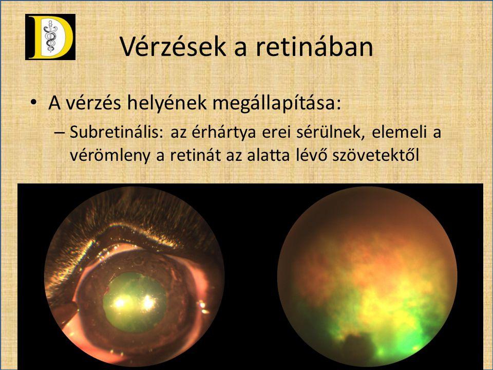 Vérzések a retinában • A vérzés helyének megállapítása: – Subretinális: az érhártya erei sérülnek, elemeli a vérömleny a retinát az alatta lévő szövet