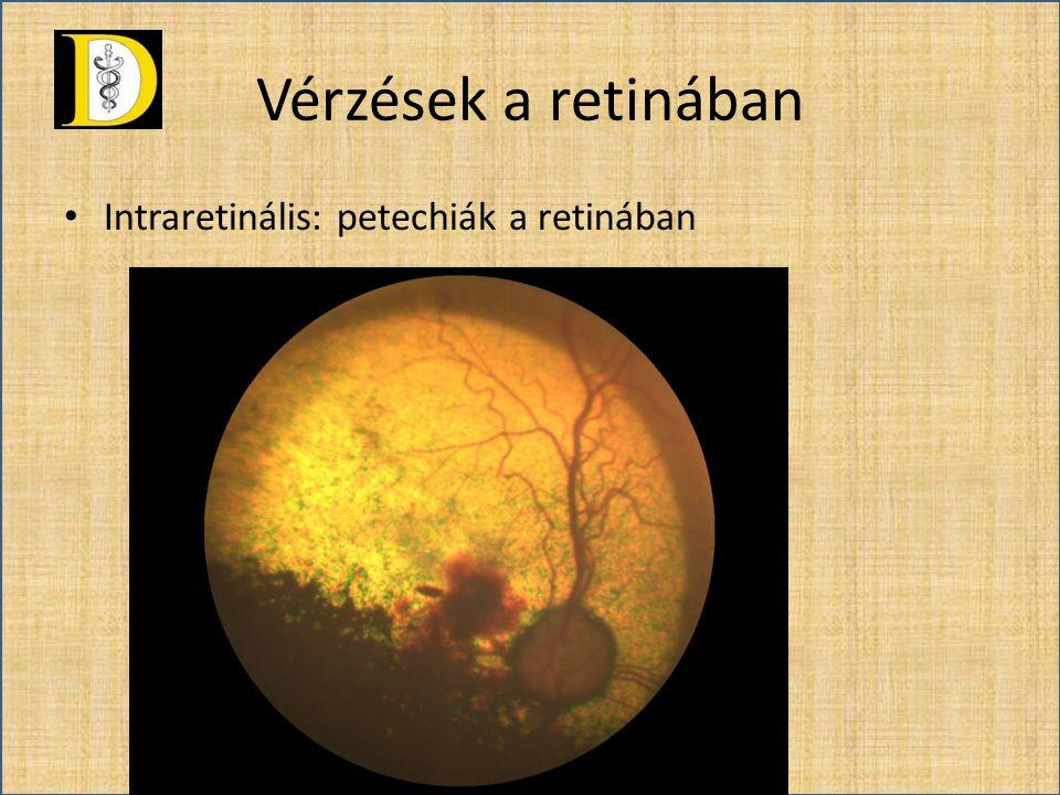 Vérzések a retinában • Intraretinális: petechiák a retinában