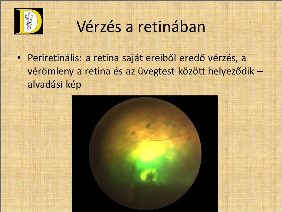 Vérzés a retinában • Periretinális: a retina saját ereiből eredő vérzés, a vérömleny a retina és az üvegtest között helyeződik – alvadási kép