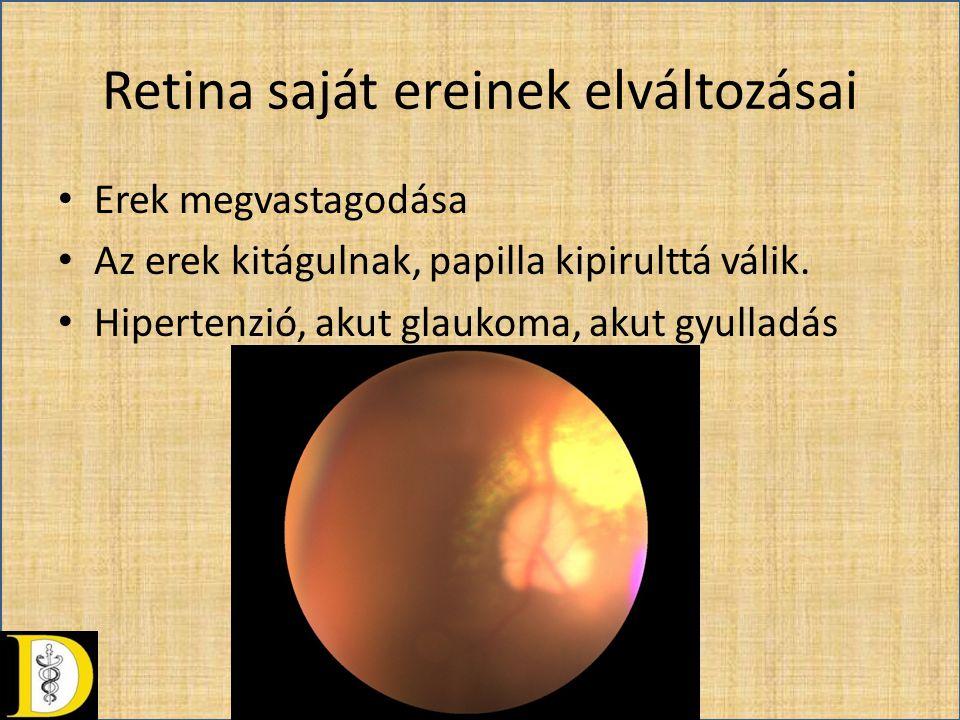 Retina saját ereinek elváltozásai • Erek megvastagodása • Az erek kitágulnak, papilla kipirulttá válik. • Hipertenzió, akut glaukoma, akut gyulladás