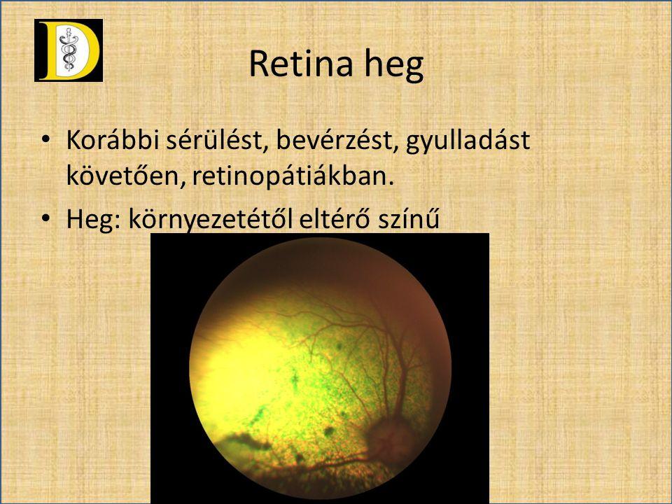 Retina heg • Korábbi sérülést, bevérzést, gyulladást követően, retinopátiákban. • Heg: környezetétől eltérő színű
