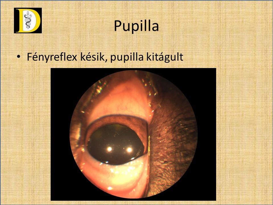 Pupilla • Fényreflex késik, pupilla kitágult