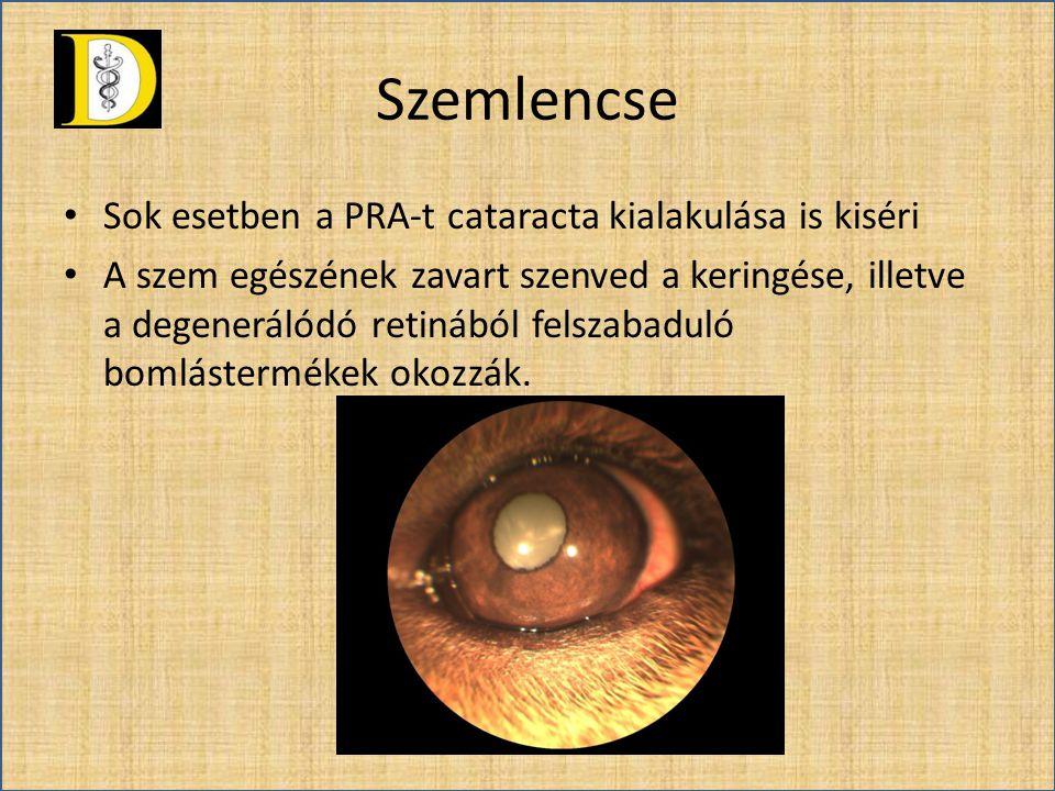 Szemlencse • Sok esetben a PRA-t cataracta kialakulása is kiséri • A szem egészének zavart szenved a keringése, illetve a degenerálódó retinából felsz