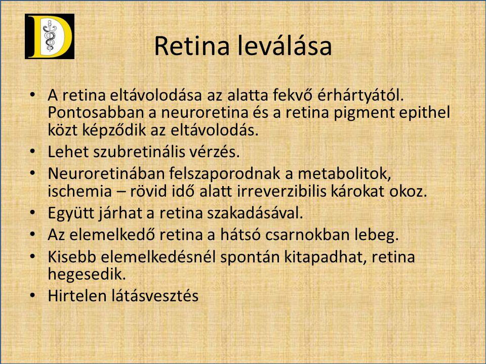 Retina leválása • A retina eltávolodása az alatta fekvő érhártyától. Pontosabban a neuroretina és a retina pigment epithel közt képződik az eltávolodá