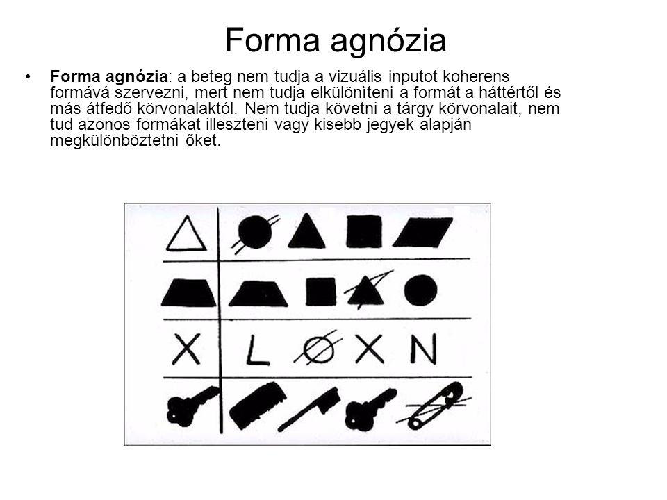 Forma agnózia •Forma agnózia: a beteg nem tudja a vizuális inputot koherens formává szervezni, mert nem tudja elkülönìteni a formát a háttértől és más átfedő körvonalaktól.
