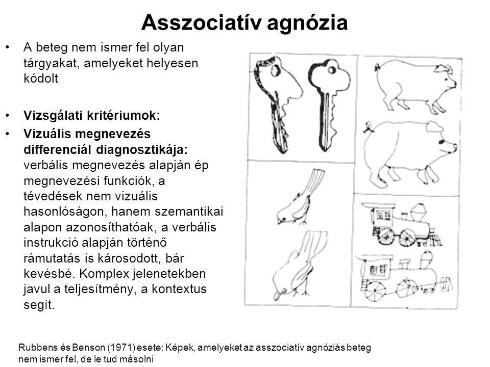 Asszociatív agnózia •A beteg nem ismer fel olyan tárgyakat, amelyeket helyesen kódolt •Vizsgálati kritériumok: •Vizuális megnevezés differenciál diagn