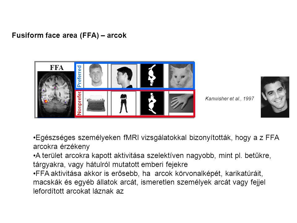 FFA Preferred Nonprefer. Kanwisher et al., 1997 Fusiform face area (FFA) – arcok •Egészséges személyeken fMRI vizsgálatokkal bizonyították, hogy a z F