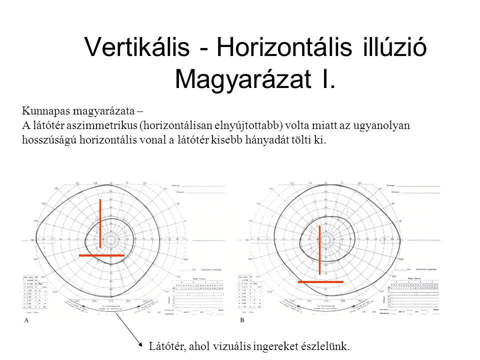 Látótér mérés - Periméter