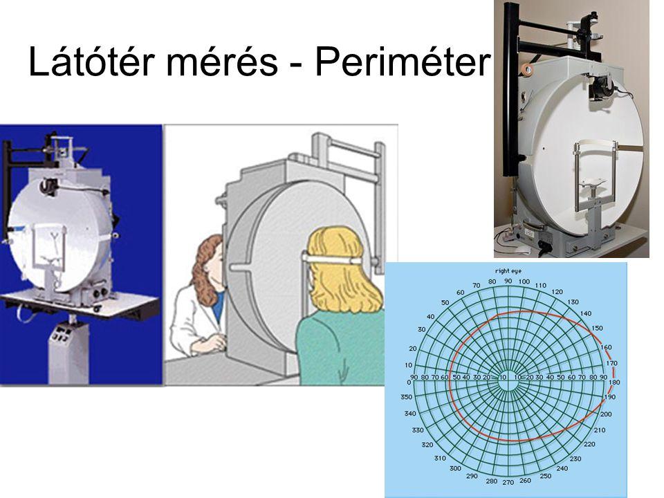 Kunnapas magyarázata – A látótér aszimmetrikus (horizontálisan elnyújtottabb) volta miatt az ugyanolyan hosszúságú horizontális vonal a látótér kisebb hányadát tölti ki.