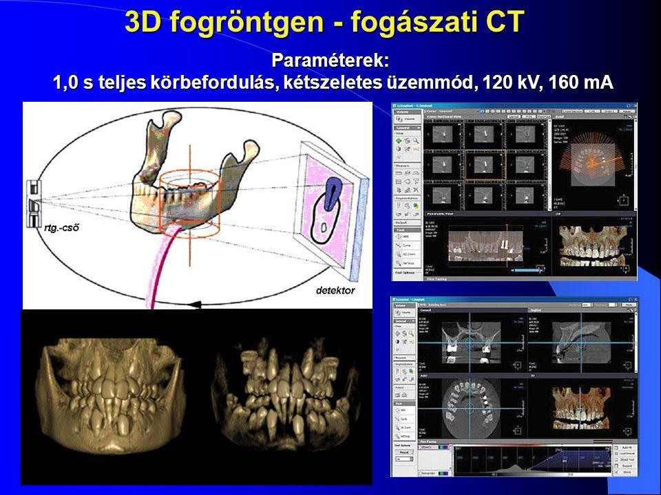 3D fogröntgen - fogászati CT Paraméterek: 1,0 s teljes körbefordulás, kétszeletes üzemmód, 120 kV, 160 mA 1,0 s teljes körbefordulás, kétszeletes üzem