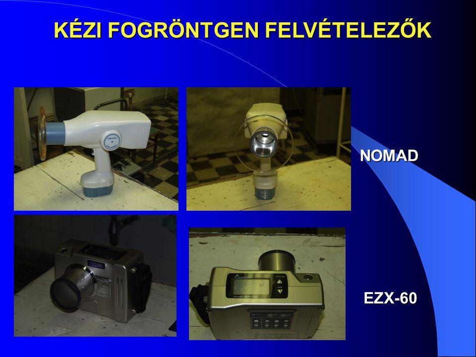 NOMAD EZX-60 KÉZI FOGRÖNTGEN FELVÉTELEZŐK