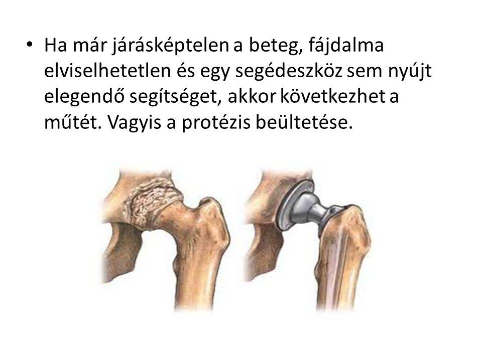 • Ha már járásképtelen a beteg, fájdalma elviselhetetlen és egy segédeszköz sem nyújt elegendő segítséget, akkor következhet a műtét. Vagyis a protézi