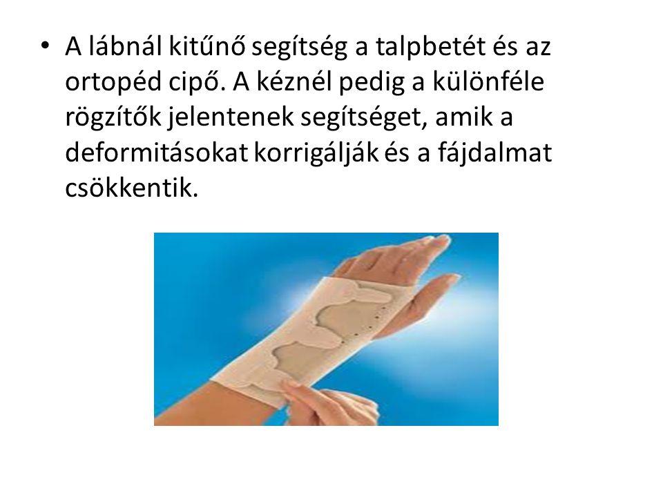 • A lábnál kitűnő segítség a talpbetét és az ortopéd cipő. A kéznél pedig a különféle rögzítők jelentenek segítséget, amik a deformitásokat korrigáljá