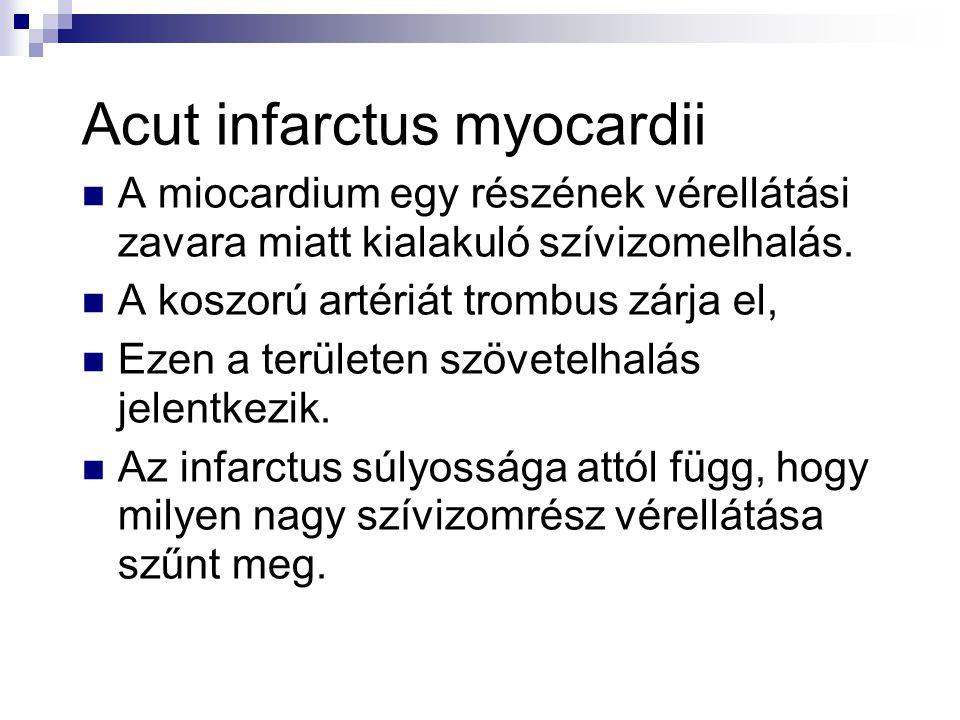 Acut infarctus myocardii  A miocardium egy részének vérellátási zavara miatt kialakuló szívizomelhalás.  A koszorú artériát trombus zárja el,  Ezen
